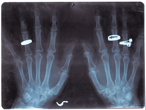 The Cool Couple, Guide to X-Ray Jewelry, Untitled 08, 2013. Lightbox, 20x30x10 cm circa