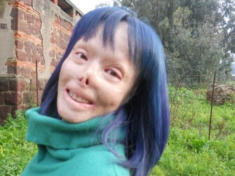 Valentina Pitsalis, sfigurata per mano del marito