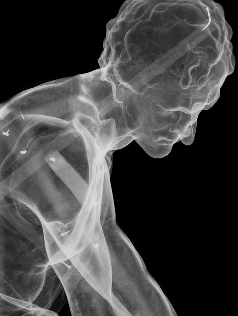 Thierry Radelet, mostrami l'anima 30 x 40 cm radiografia digitale