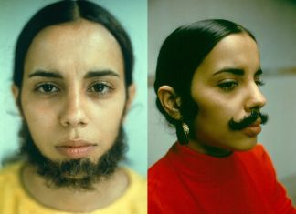 Ana Mendieta, Facial Hair Transplant, 1972