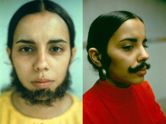 Ana Mendieta, Facial Hair Transplant, 1972