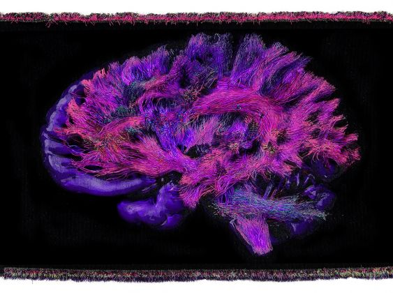Christian Fogarolli, Recycled Brain, 2020, Recycled plastic, natural yarns, 180 x 260 x 5 cm, Ed. 1/2 + AP. Courtesy Galerie Alberta Pane, Paris/Venice. Work realized with Giovanni Bonotto and A-Collection